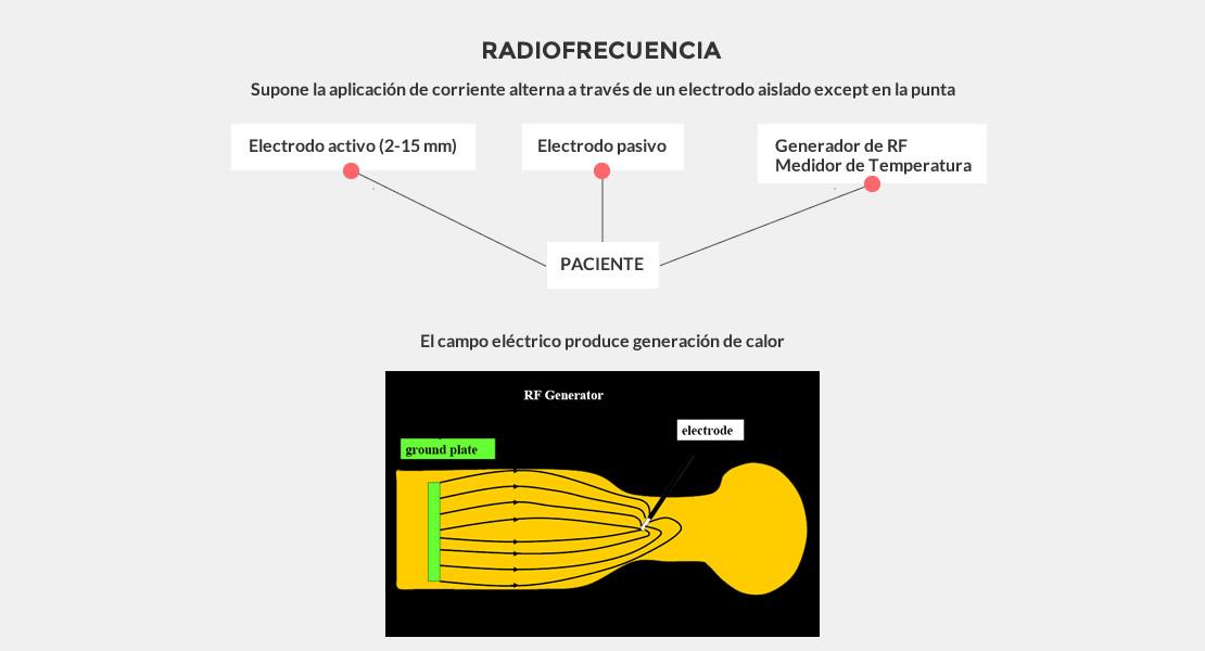 1_007_RADIOFRECUENCIA_DE_TERMINACIONES_NERVIOSAS_01