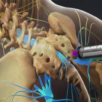 Tratamiento de la disfunción del suelo pélvico mediante bloqueo nervioso.