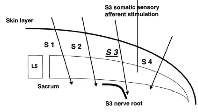 neuromodulacion-raices-sacras02