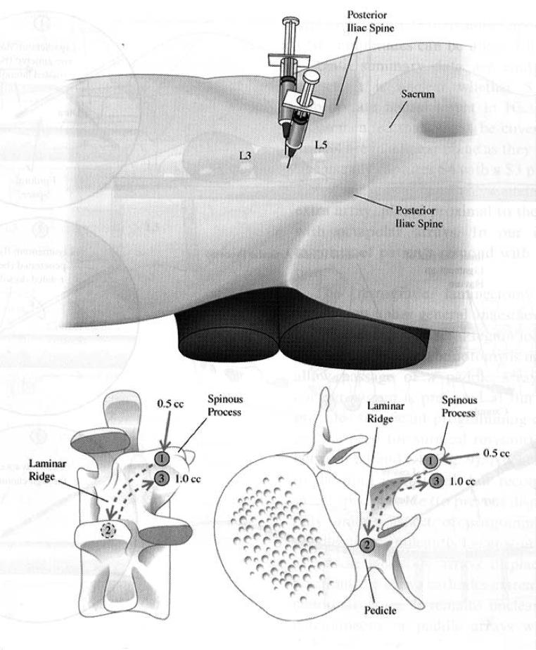 neuromodulacion-raices-sacras04