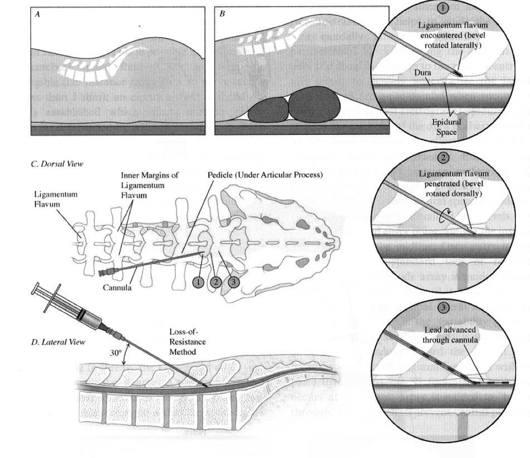 neuromodulacion-raices-sacras05
