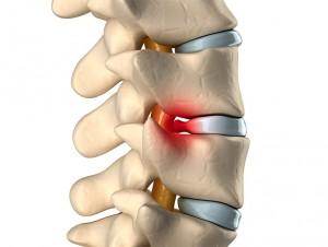 tratamiento hernia discal. medicina del dolor.
