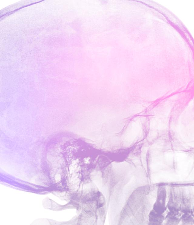 Diagnóstico dolor de cabeza