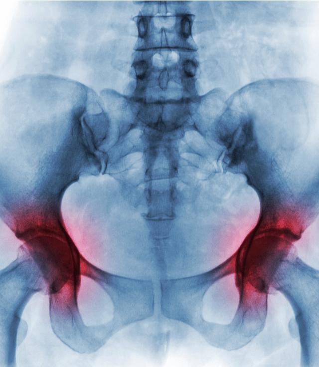 Diagnóstico dolor de cadera