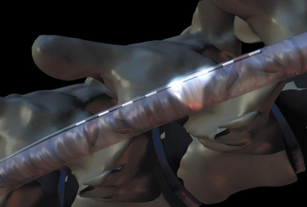 Implante de sistemas de estimulación medular y nervio periférico