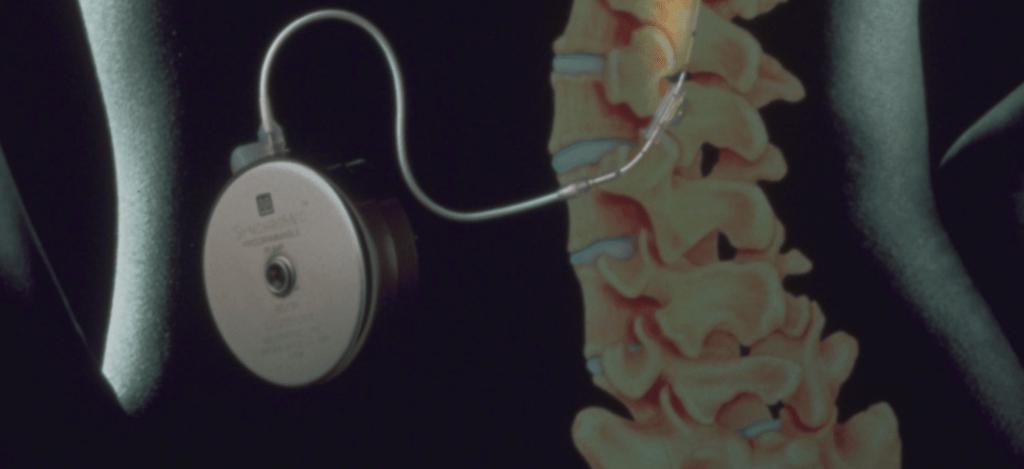 Implante de sistemas de infusión espinal 1