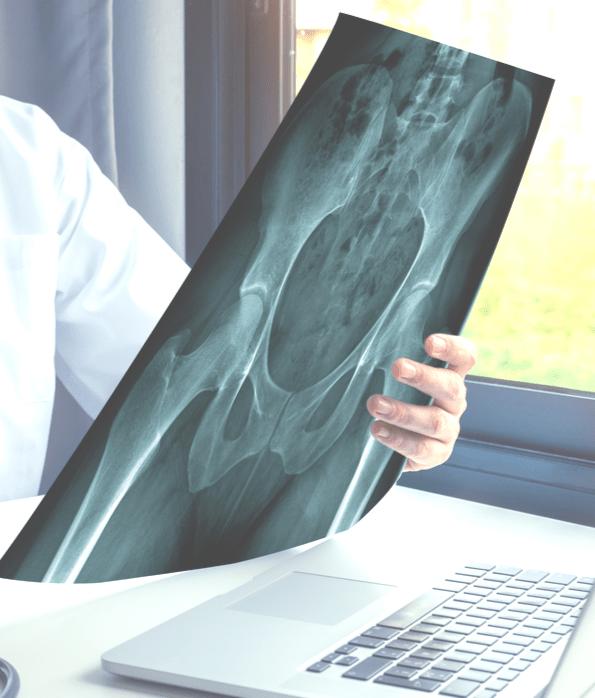 Tratamiento dolor de cadera
