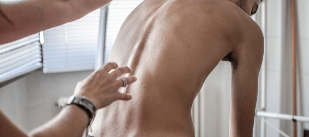 dolor de espalda por escoliosis